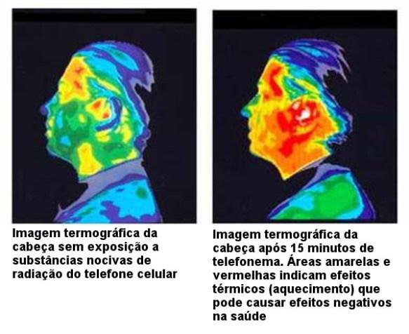 Cérebro-Post-21.08.2015-16