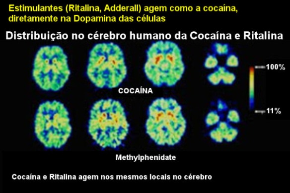 Cérebro-Post-20.11.2015-15
