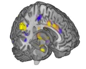 Cérebro-Post-11.12.2015-20