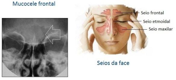 Cérebro-Post-11.12.2015-3